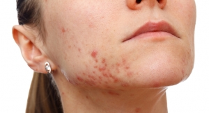 REVISE: Galderma To Meet with FDA About Rx-to-OTC Acne Switch