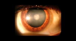 Stem Cells Regenerate Human Lens After Cataract Surgery, Restoring Vision