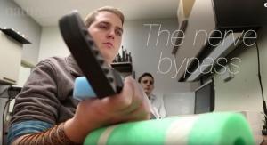 Implant Enables Quadriplegic to Move Hand with Mind