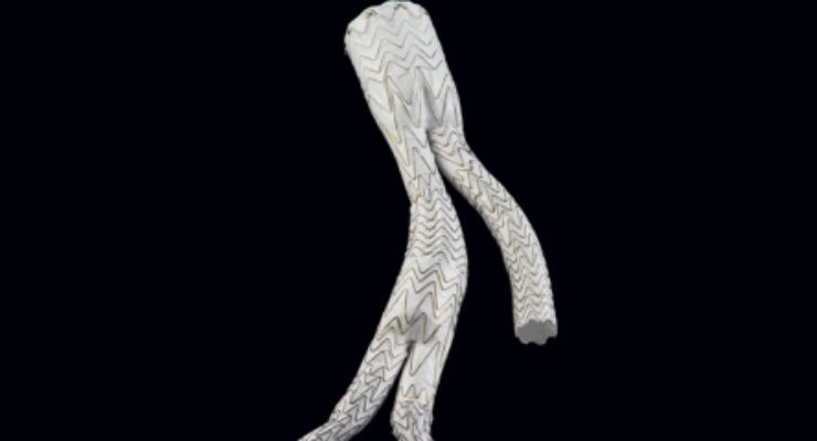 Gore Excluder Iliac Branch Endoprosthesis Gains Health Canada Approval