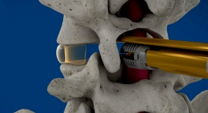 Wenzel Spine Releases New Lumbar Fusion Surgical System