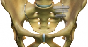 SI-BONE Receives 510(k) Clearance for Updated Indication for iFuse Implant System