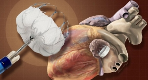 Device for Irregular Heartbeat May Be More Cost-Effective than Medication