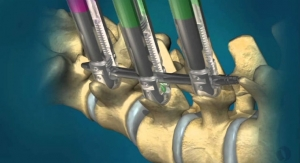 Orthofix Gains Japanese Approval and Launches Minimally Invasive Spinal Fixation System