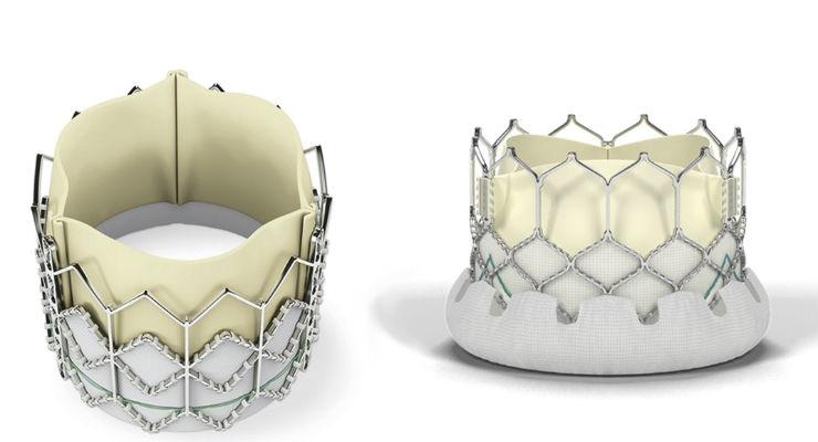FDA Expands Indication for Edwards Sapien XT and Sapien 3 Transcatheter Heart Valves