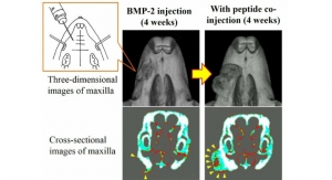 Injected Mix of Bone-Augmenting Agents Causes New Bone Growth