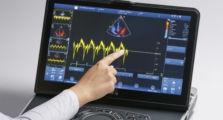 GE's Battery-Operated Diagnostic Ultrasound System Goes Everywhere Patients Are