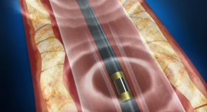 FDA Clears First Technology to Use Sound Waves to Treat Calcified Peripheral Artery Disease