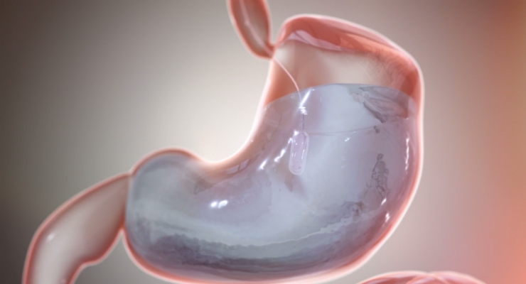 FDA Approves Obalon's Swallowable, Gas-Filled Weight Loss Balloon