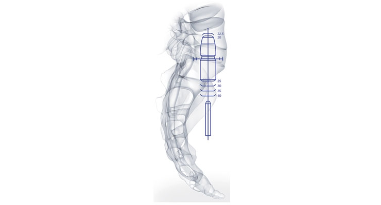 The pre-sacral approach enables surgeons to maintain the annulus intact and avoid damage to the bony, muscular, nervous and ligamentous tissues surrounding the spine. Image courtesy of TranS1.