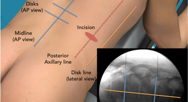 Minimally Invasive Direct Thoracic Interbody Fusion Proves Effective for Back Pain