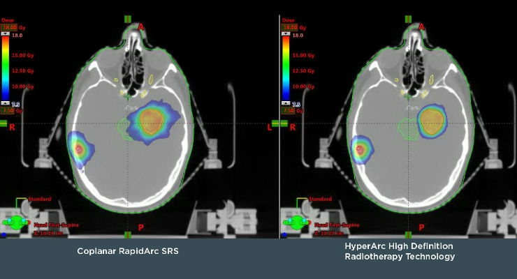 Varian Exhibiting New HyperArc Technology for High Definition Radiotherapy and Radiosurgery