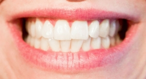 First Data on New Dental Fillings that Will Repair Tooth Decay