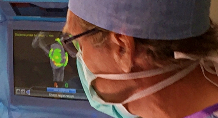 Successful First Surgeries with ExactechGPS Total Shoulder Application