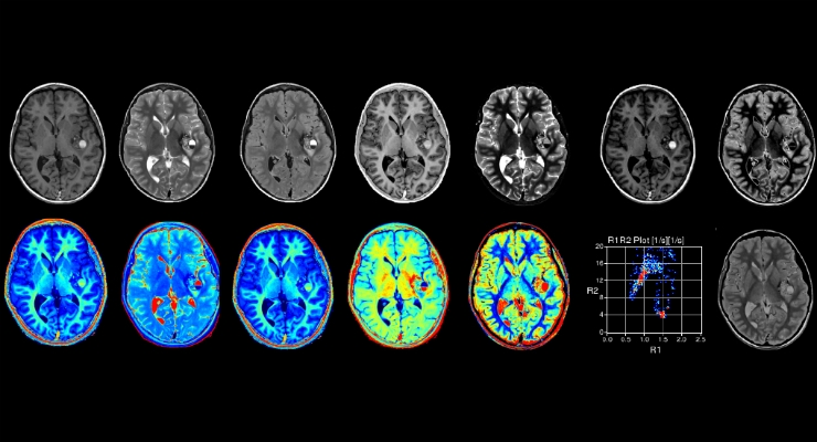 FDA Clears GE's New Speedy MRI Scanning