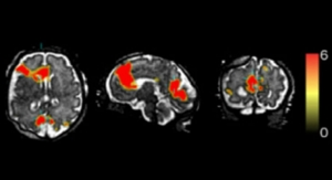 New Technology Reveals Fetal Brain Activity
