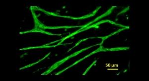 Engineered Sheet of Stem Cells Creates Skin Graft for Bad Burns