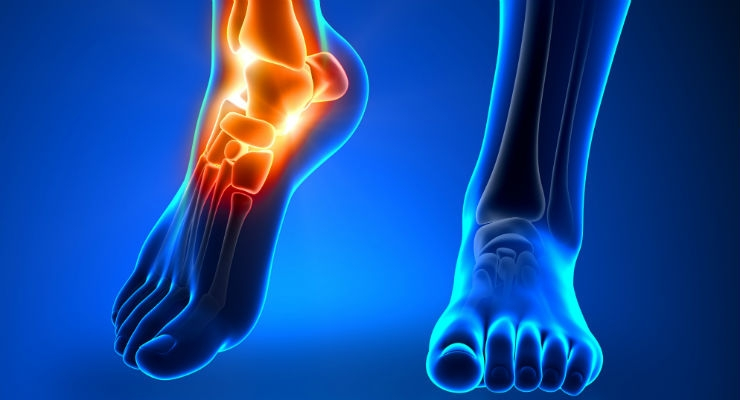 Supporting Foot/Ankle Surgeon Inventors