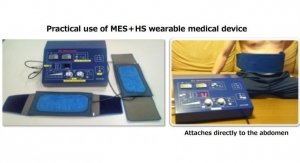 Wearable for Type 2 Diabetes Delivers Mild Electrical Stimulation and Heat Shock