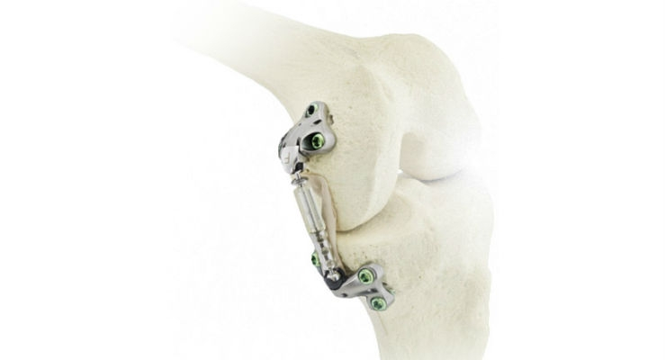 First U.S. Patient Treated with Moximed's Atlas System for Unicompartmental Knee Osteoarthritis
