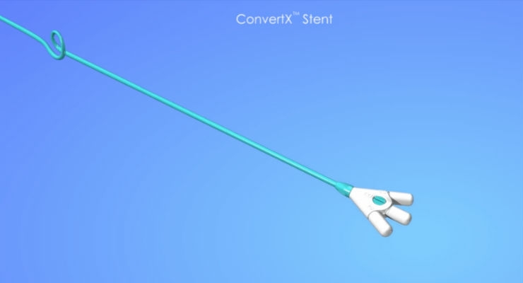 FDA Clears BrightWater Medical's ConvertX Nephroureteral Stent System