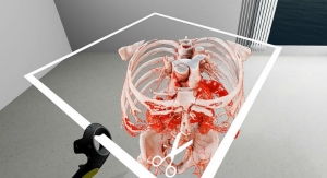 Virtual Reality in Medicine: New Opportunities for Diagnostics and Surgical Planning