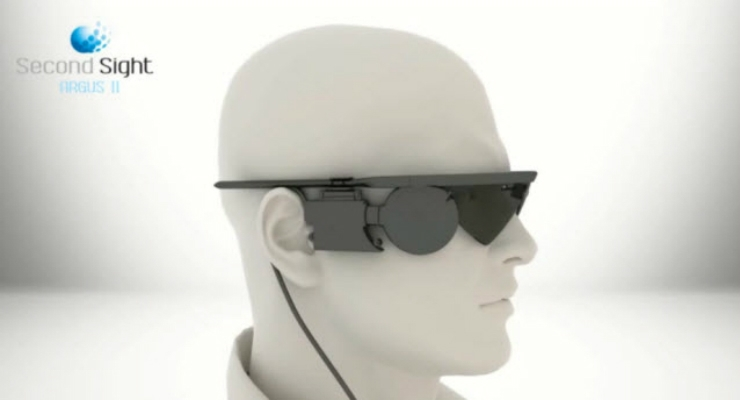 Second Sight's Argus II 'Bionic Eye' Receives Funding from UK Goverment