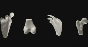 Interactive 3D Human Joint Models to Provide Insights into Common Orthopedic Complaints