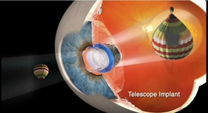 VisionCare to Initiate Clinical Study of Telescope Implant in Post-Cataract Patients