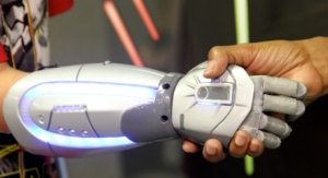 Study Determines Candidates for Bionic Hand Reconstruction
