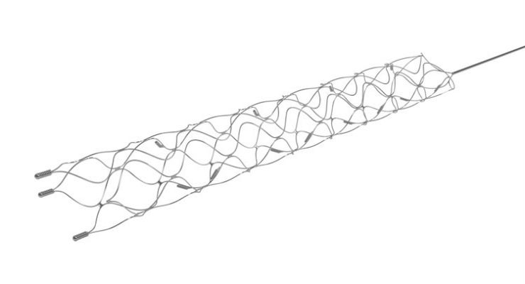 Stent Retriever Study Validates Outcomes