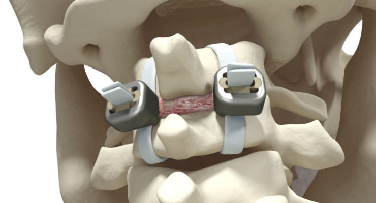 Implanet Granted French Patent for Jazz Lock Implant