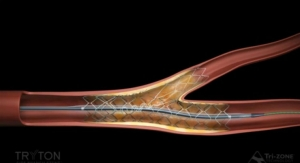 FDA Approval for Tryton Side Branch Stent