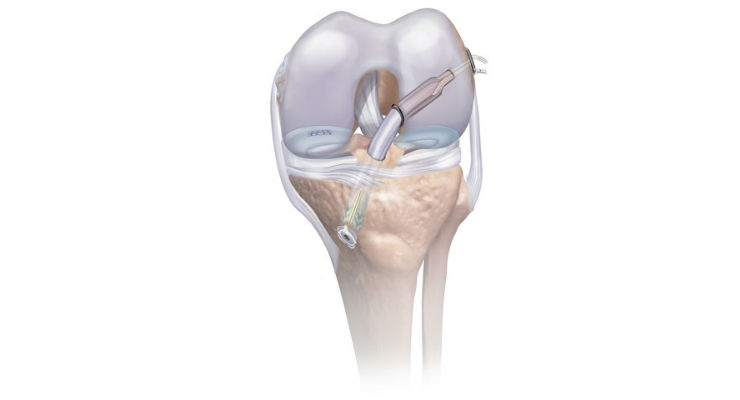 AAOS: DePuy Synthes Reveals Knee Arthroscopy Platform for ACL and Meniscal Repair
