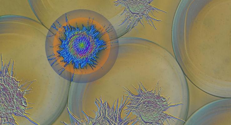 Loosening the Immune System