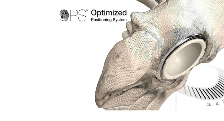 AAOS: Optimized Positioning Systemfor Hip Replacement Launched