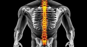 InVivo to Initiate Cervical Spinal Cord Injury Study