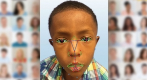 Facial Recognition Software Helps Identify Rare Genetic Disease