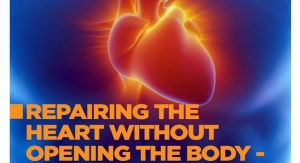 Repairing the Heart Without Opening the Body