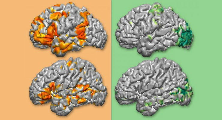Personalized 3D Brain Maps to Guide Neurosurgeries