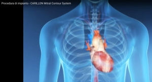 Cardiac Dimensions Enrolls First Patients in REDUCE FMR Clinical Trial