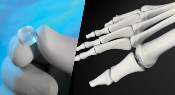 Cartiva Completes Enrollment in Synthetic Cartilage Implant Trial for Osteoarthritis