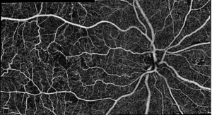 Optovue First to Release High Density OCT Angiography for Ophthalmology