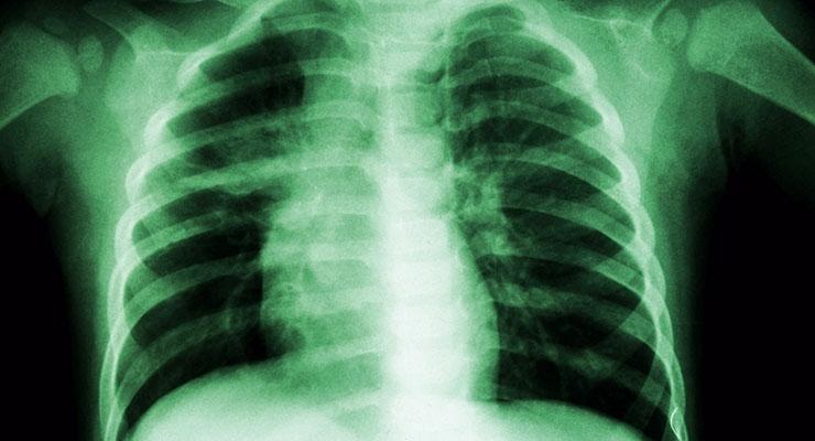 In vivo Models Targeting Respiratory Diseases