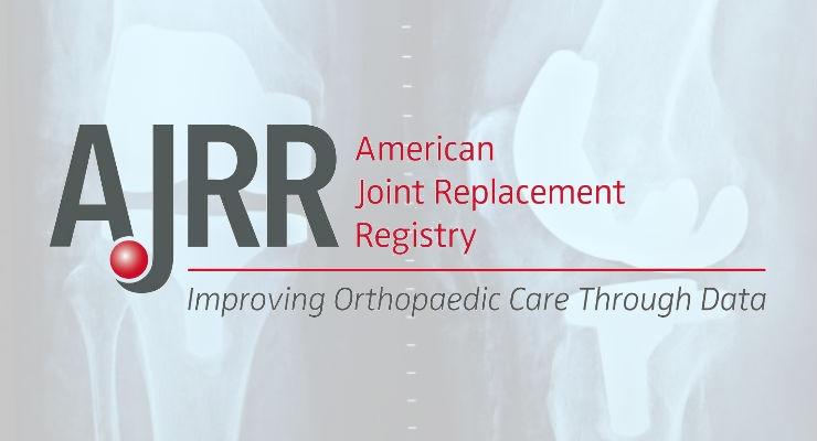 Facilitating the Development of Implant Survivorship Curves