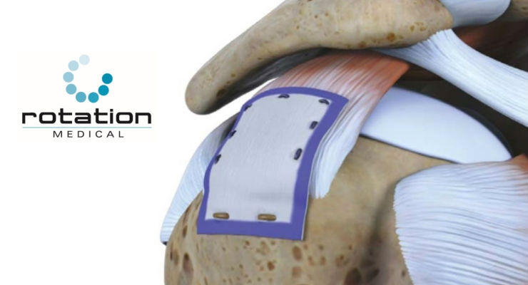 Bioinductive Rotator Cuff Implant Brings Reduced Pain, Faster Return to Activities
