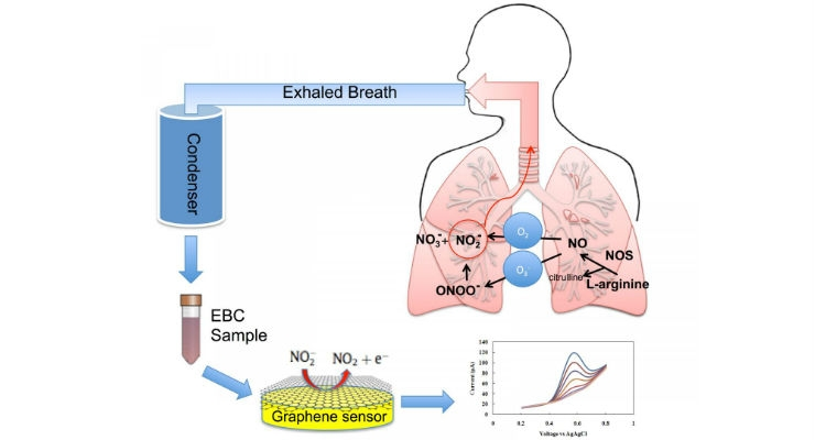 Graphene-Based Sensor Could Improve Asthma Treatment