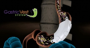 EnteroMedics Acquires the Gastric Vest System