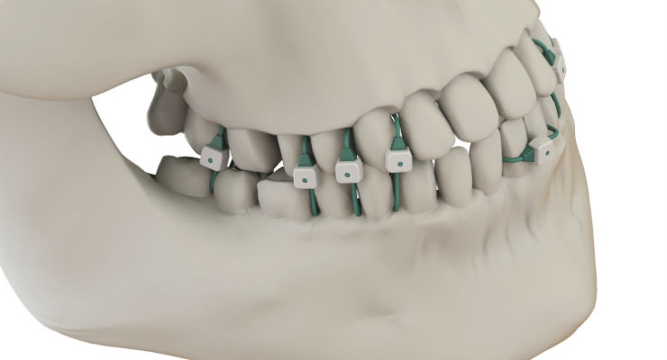 Minne Ties medical grade sutures securely hold the jaw in a closed position with less discomfort than metal wires to the patient and can be applied without the worry of wire stick risks to the surgeon. Image courtesy of Summit Medical Inc.
