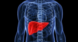 First Patient Treated in Trial of DIALIVE, a Novel Liver Dialysis Device